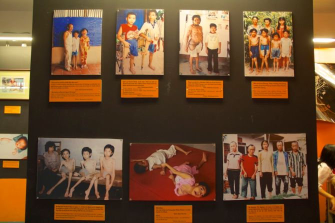 These are children of people impacted by agent orange in the war - not pictures of the war itself.
